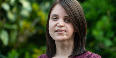 Fiatal lányok arcbőre kezd tőle elsorvadni – ilyen betegség a Parry-Romberg-szindróma