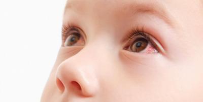 A kötőhártya-gyulladás tünetei, ragályossága és kezelése