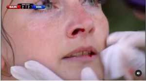 Ömlött a vér az Exatlon Hungary forgatásán, Zsófi csak nyögni és lihegni tudott a fájdalomtól - Videó