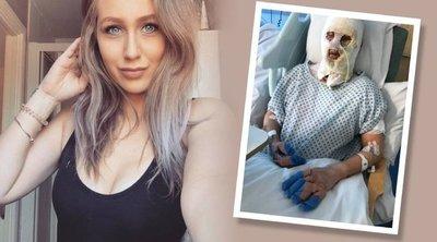 Egy barátja részeg poénja egy életre eltorzította a gyönyörű, fiatal anyukát