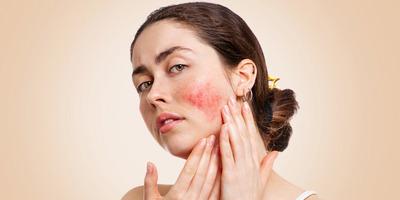 A rosacea több mint egy kis esztétikai probléma