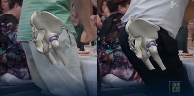 Új technológia a csípőműtétekben: vágás nélkül, kevesebb fájdalommal végezhetők az operációk
