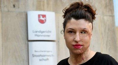 Horrortámadás csúfította el a gyönyörű háromgyermekes édesanya arcát – már soha nem lehet olyan, mint régen